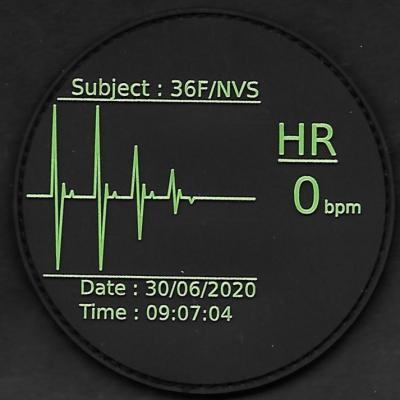 36 F - NIVOSE - HR 0 bpm